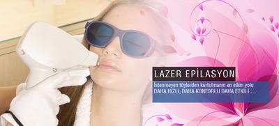Laser epi yazili